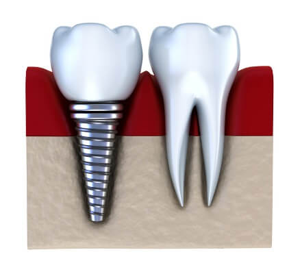 Dental-Implant-14